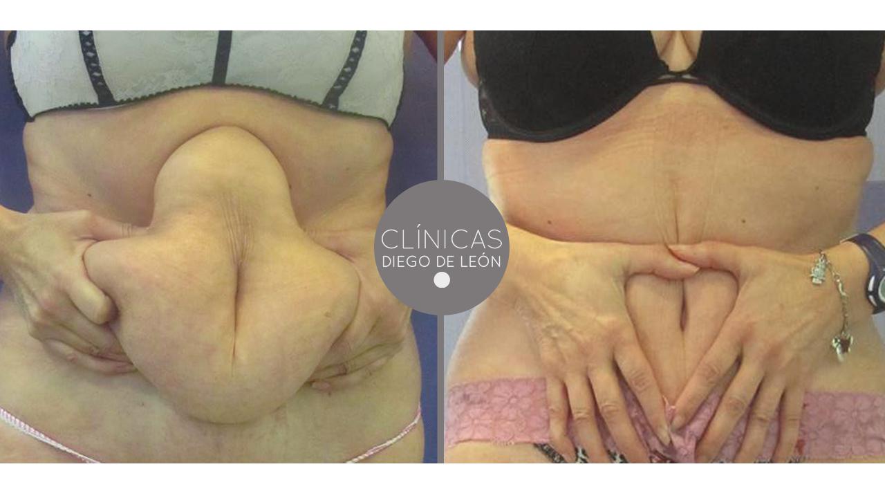 Como aumentan el pecho a las mujeres los cirujanos