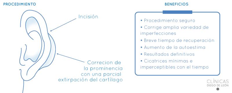 Procedimiento de la otoplastia