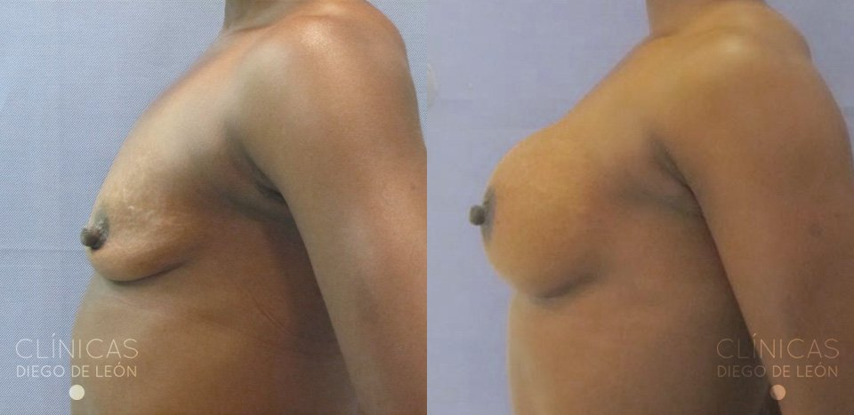 Antes y después mamoplastia