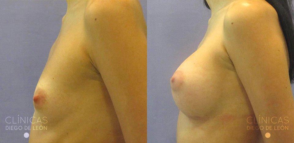 Antes y después implantes de pecho