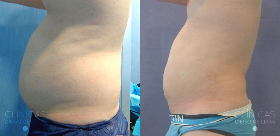Antes y después Liposucción de abdomen y flancos