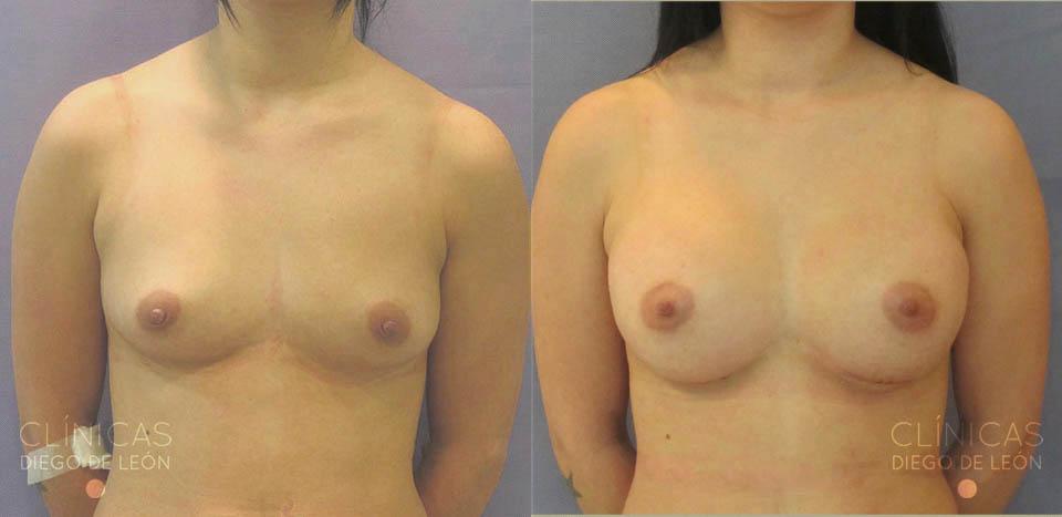 Aumento de senos en la ciudad de Oklahoma