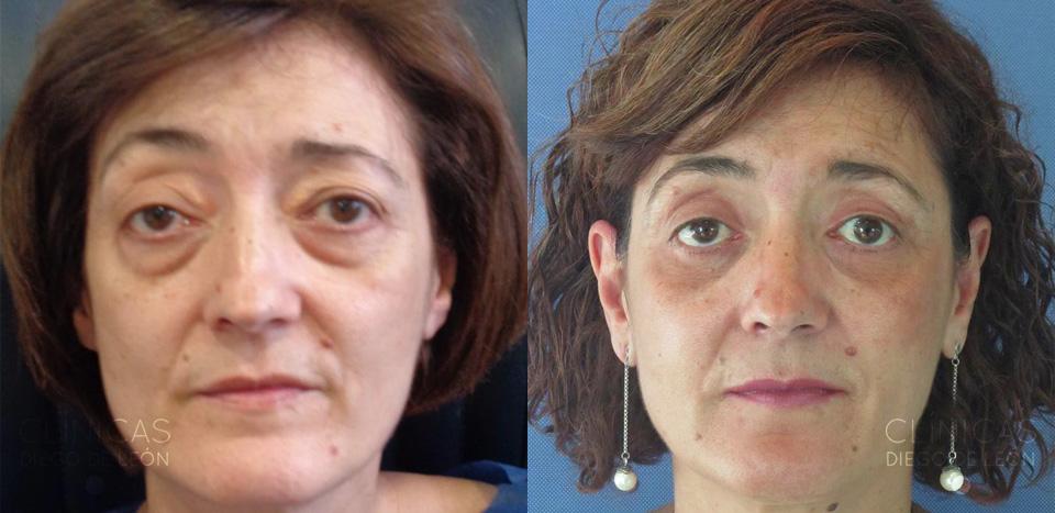 Resultados de blefaroplastia completa