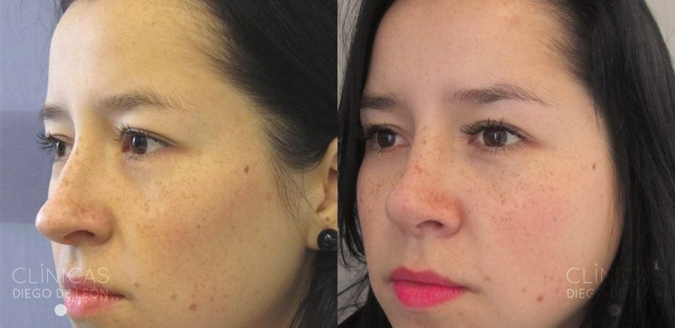 Cirugía de la nariz antes y después