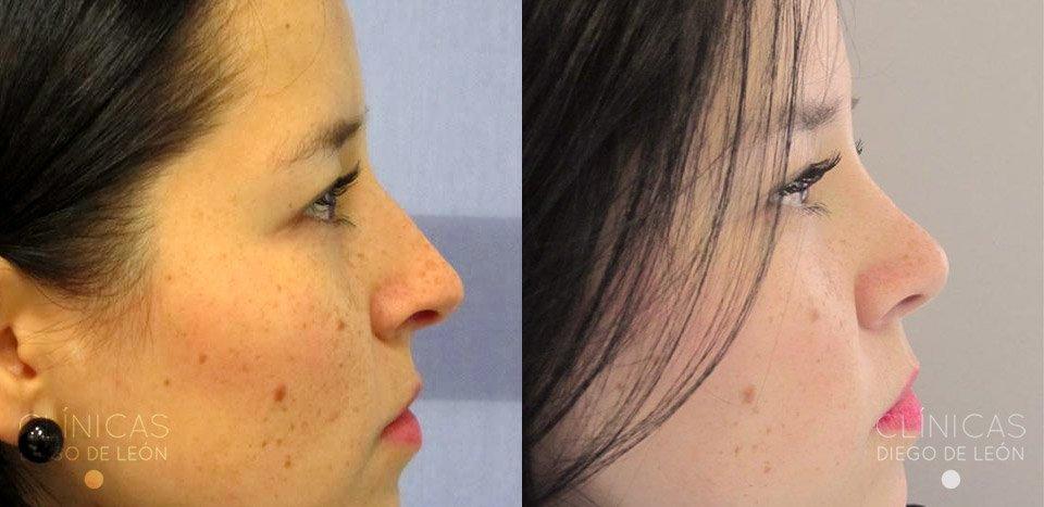 Cirugía de la nariz resultados