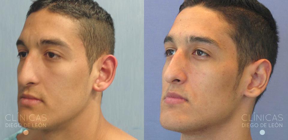 Cirugía de orejas Resultados