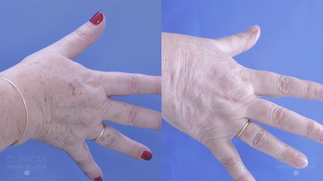 Rejuvenecimiento de manos con Laser CO2 - Clínicas Diego de León