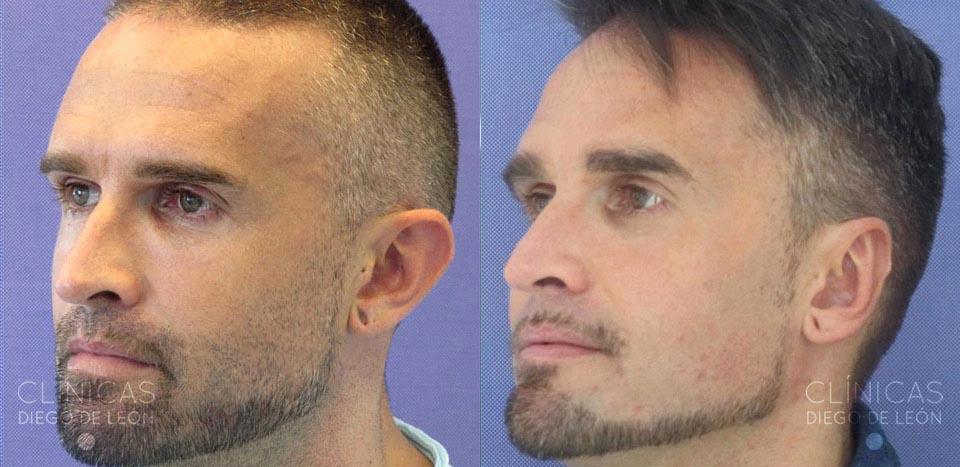 resultados de otoplastia bilateral