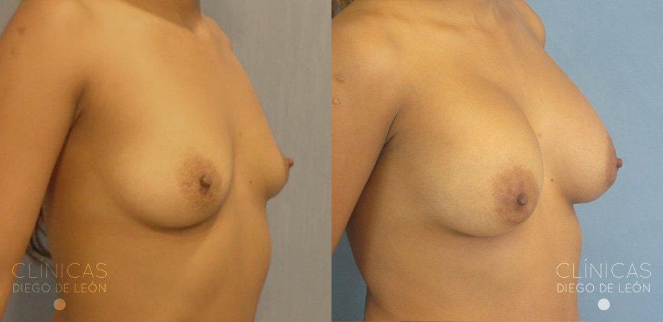 Resultados de implantes de pecho