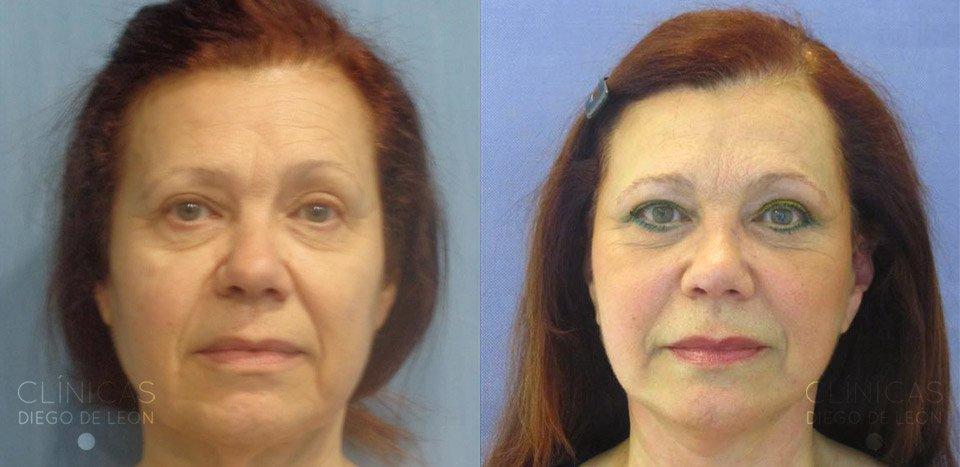 Lifting Facial Resultados