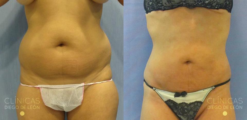 Antes y después Liposucción de abdomen
