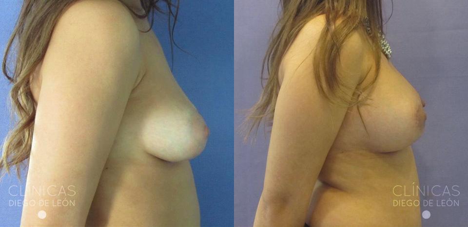 Levantamiento de pecho con implantes