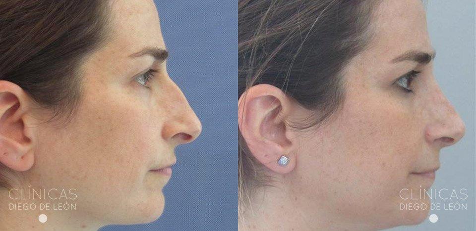 Perfil de rinoplastia antes y después