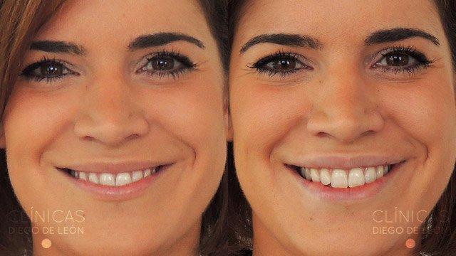 Relleno de labios resultados
