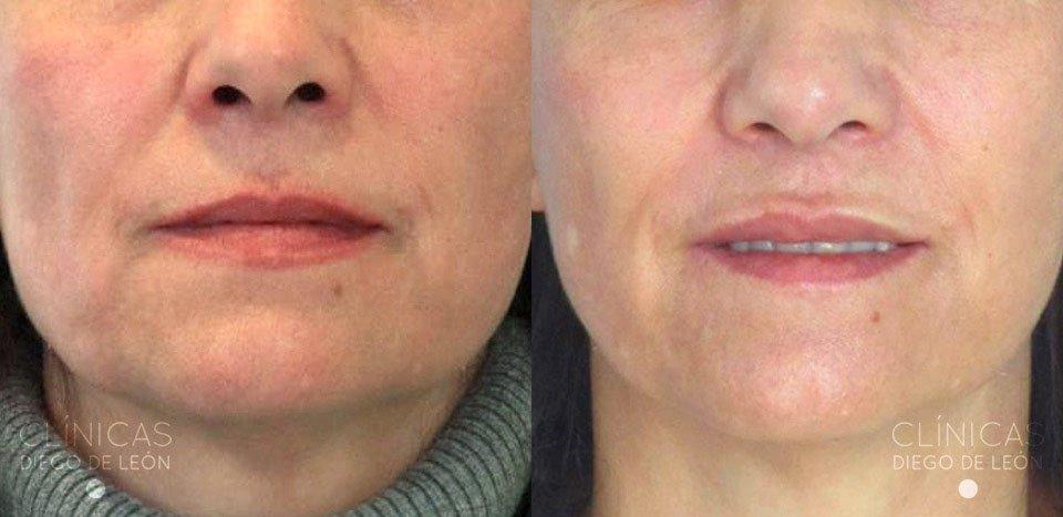 Resultados de relleno de labios
