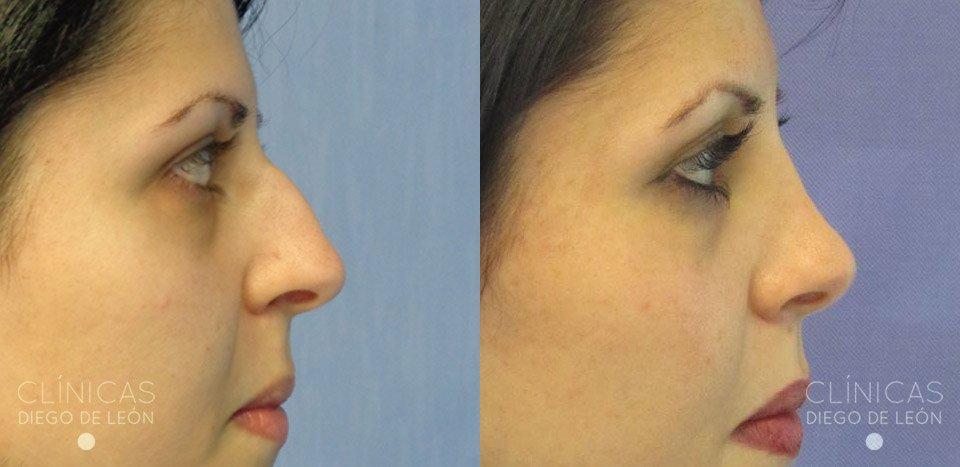 resultados perfil rinoplastia