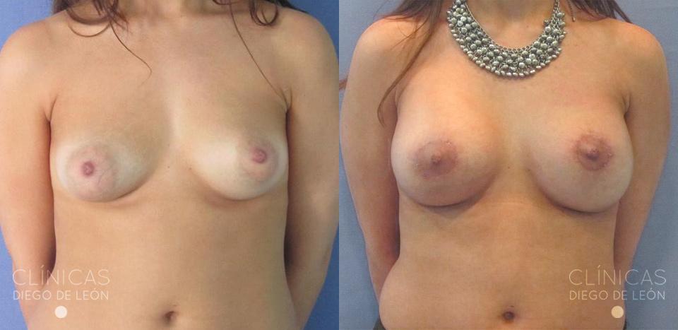 antes y después mastopexia