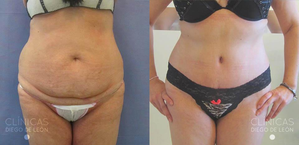 resultados de abdominoplastia