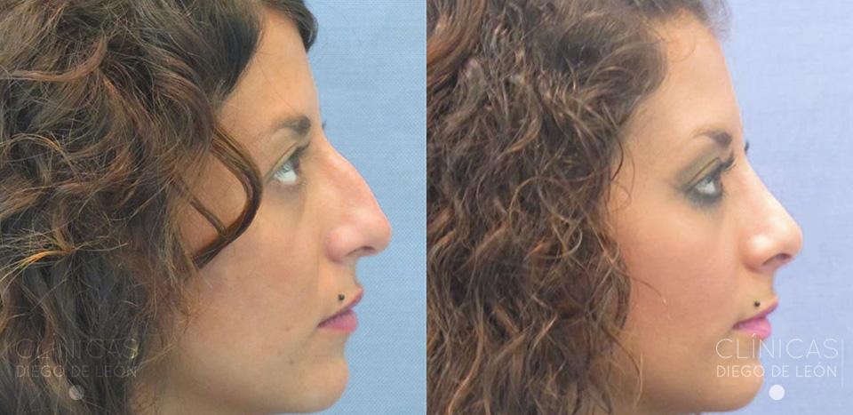 Resultados de cirugía de nariz