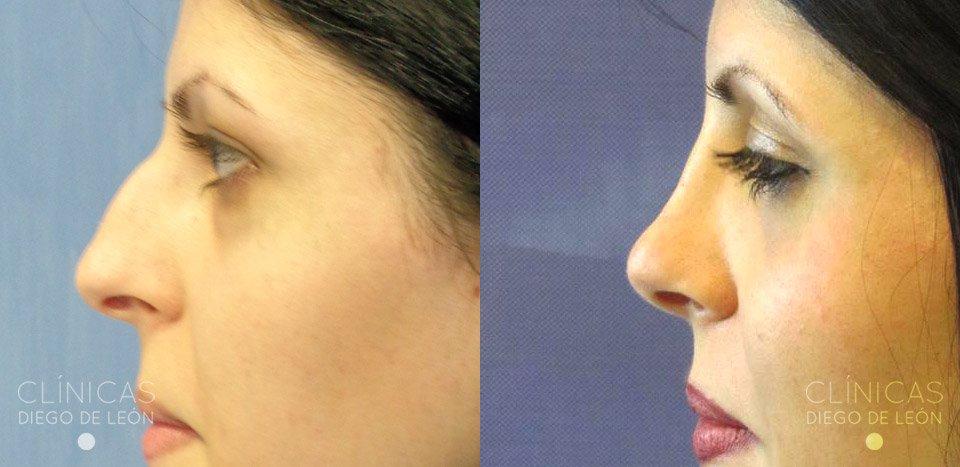 Resultados de operación de nariz