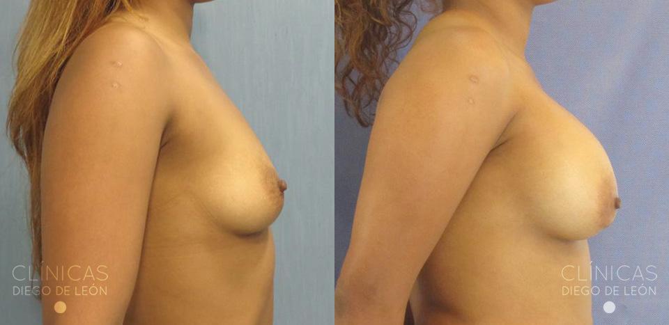 Resultados Implantes mamarios