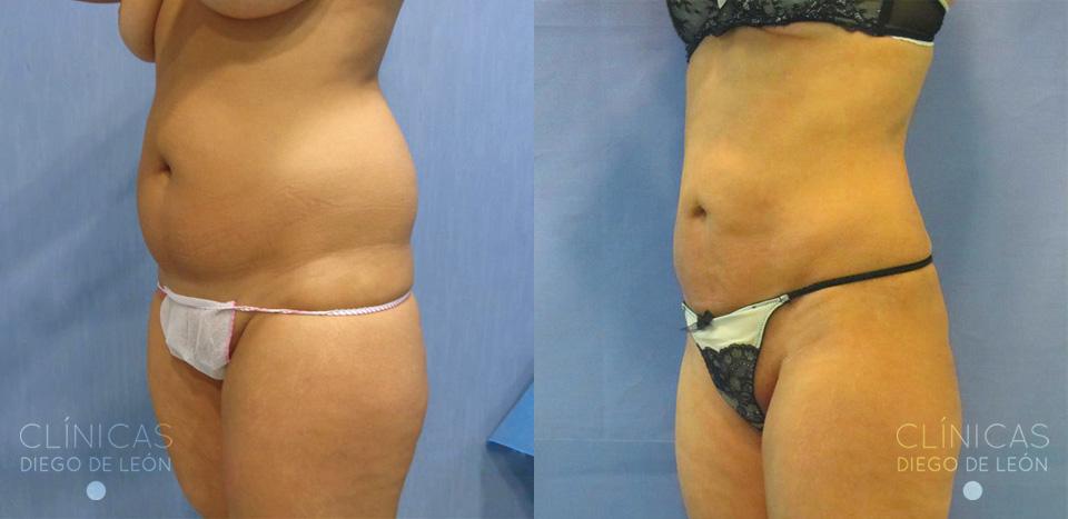 Resultados de liposucción de abdomen