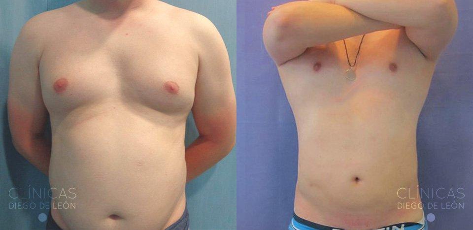 Resultados Liposucción abdomen y flancos