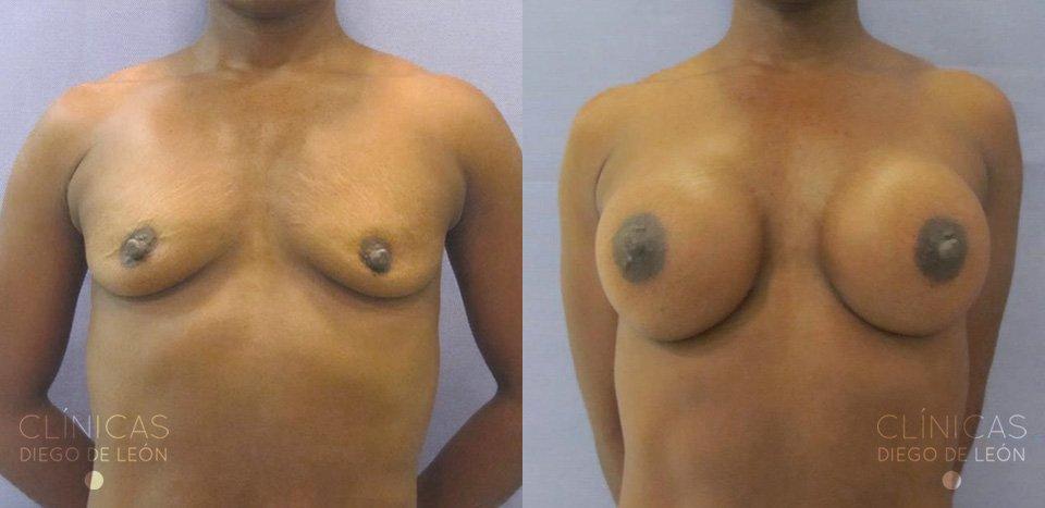 Resultados de aumento de pechos