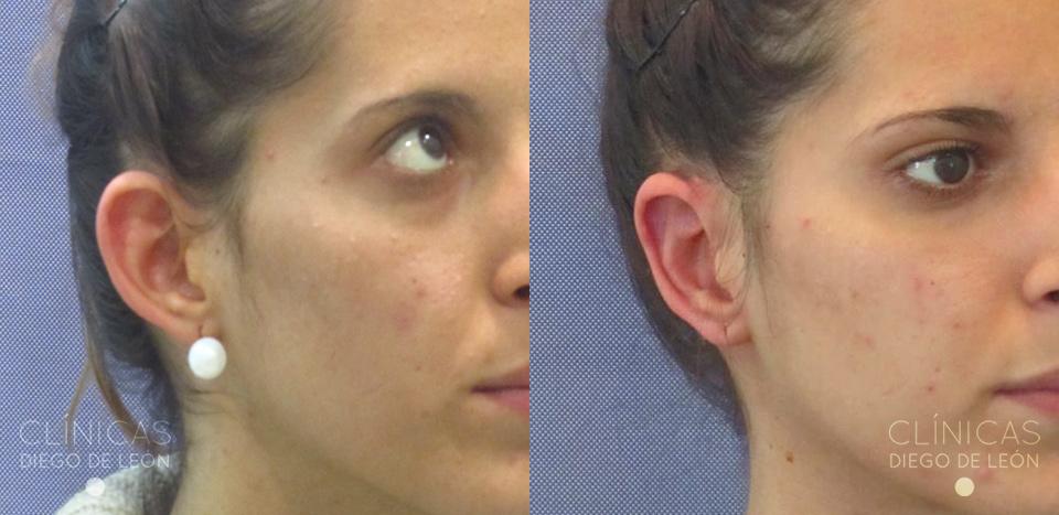 Antes y después cirugía de orejas