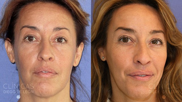 thermage facial antes y después