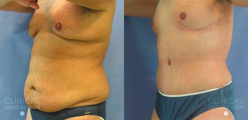 abdominoplastia en hombres antes y después
