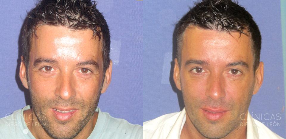 rellenos faciales para hombres