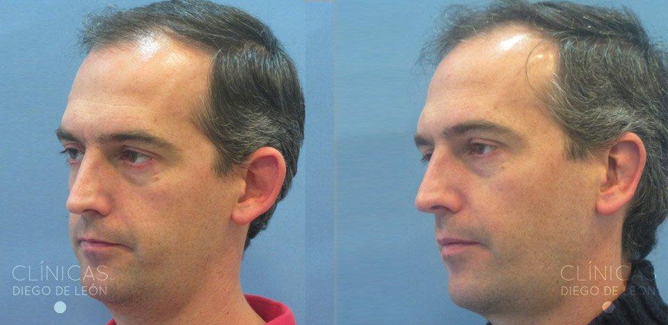 Experiencia cirugía de orejas