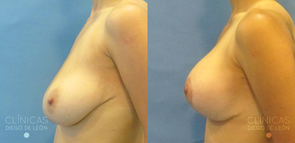 antes y despues mastopexia con implantes