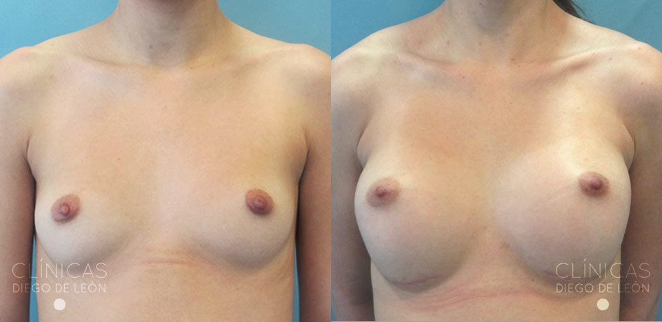 Aumento de mamas resultados