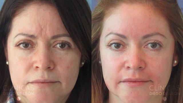Eliminar arrugas del entrecejo