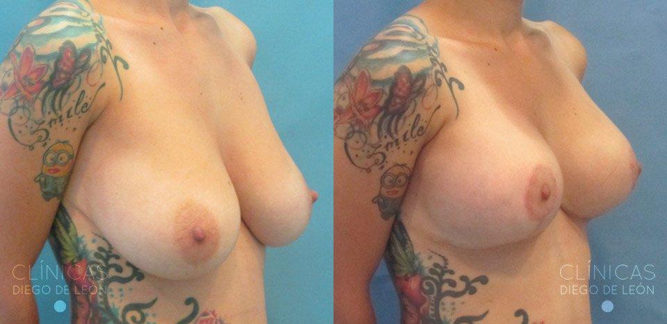 Fotos de mastopexia con implantes