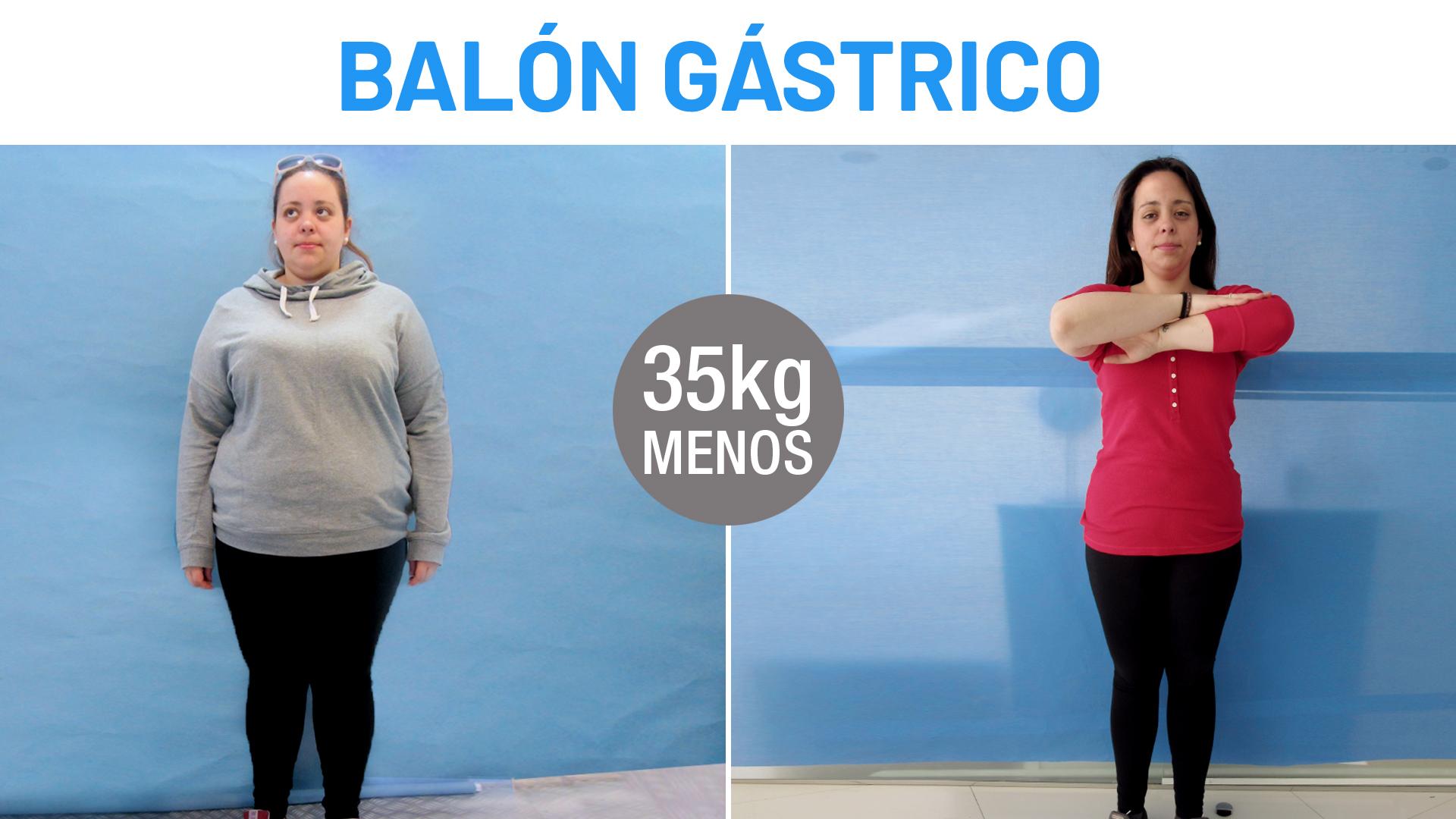 Antes y Después Micaela - Balón Gástrico