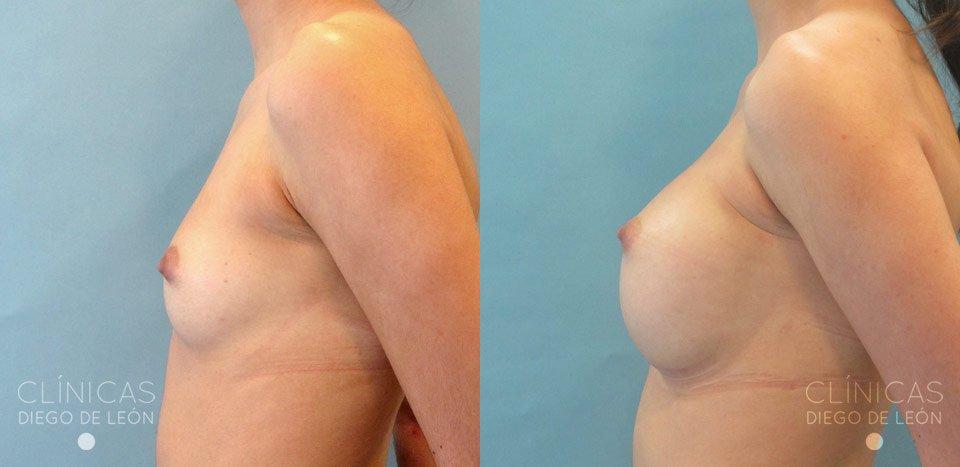 Perfil de aumento de mamas