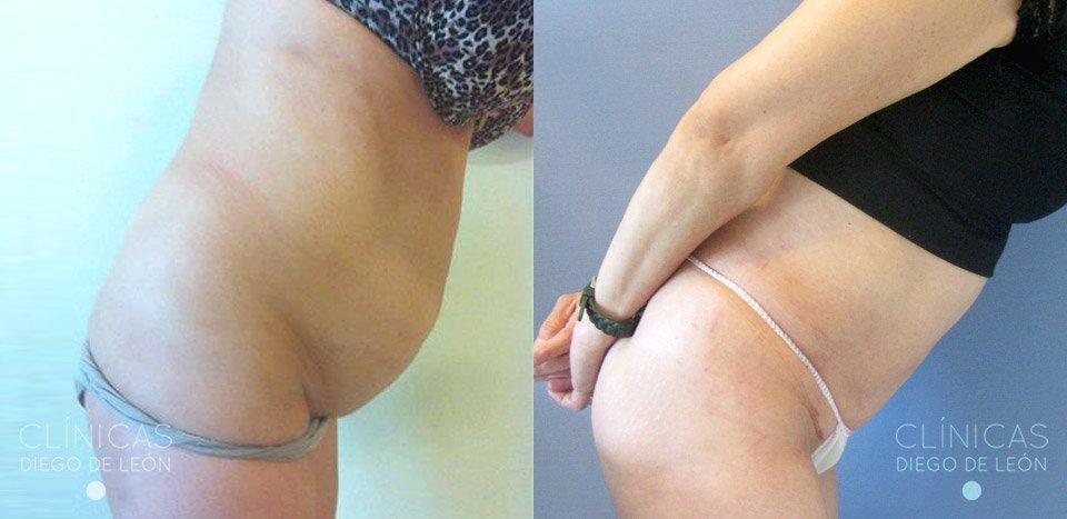 Resultados de Liposucción y Abdominoplastia