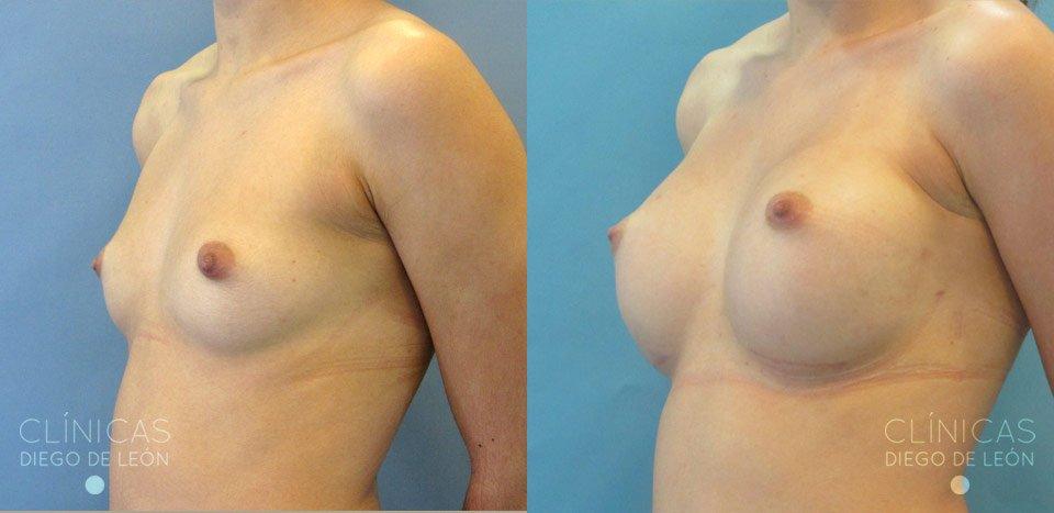 Resultados de aumento de mamas