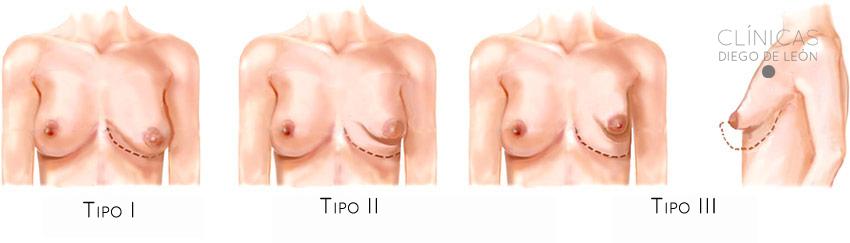 Estos son los tres tipos de grados de unas mamas tuberosas.