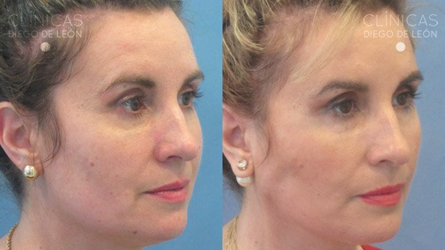 Hilos faciales antes y después