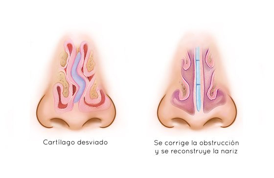 Tratamiento de Septoplastia