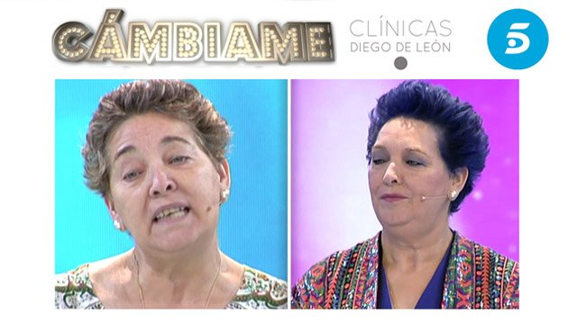 Clínica estética Cambiame Telecinco
