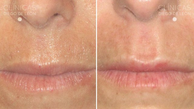 Eliminar código de barras labios