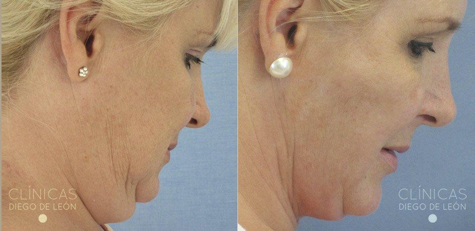 Liposucción de Papada paciente real