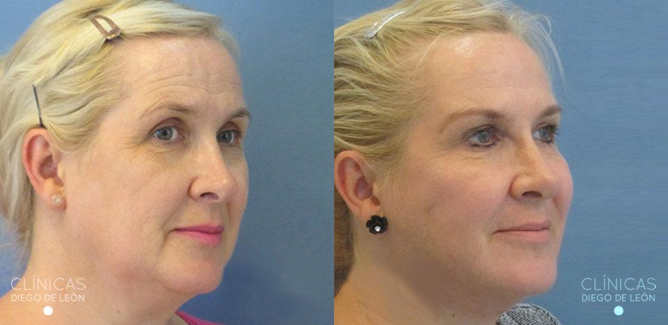 Rejuvenecimiento facial antes y después | Clínicas Diego de León