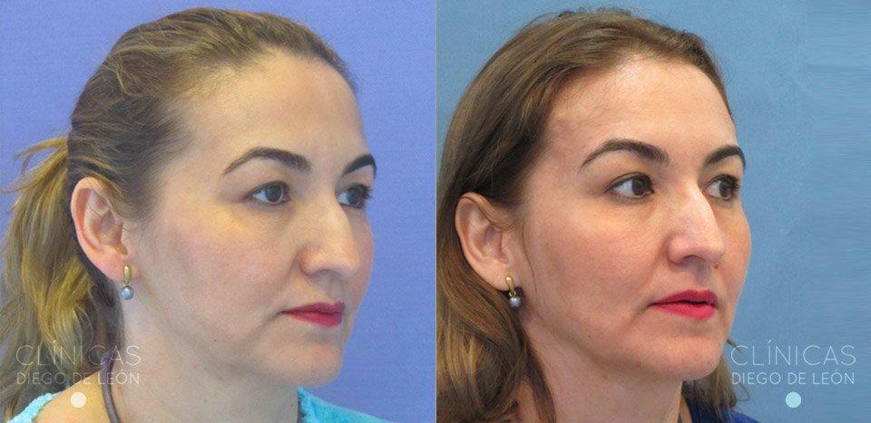 Resultados de Rejuvenecimiento facial