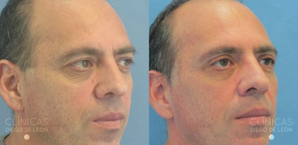 Fotos de blefaroplastia superior